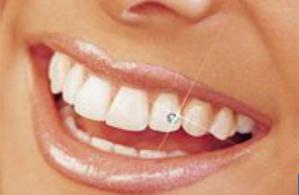 Белые зубы – как сделать?