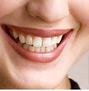 Протезирование зубов в элитной стоматологии Москвы