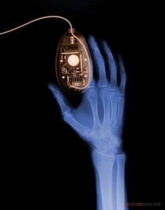 Представляют ли рентгеновские сканеры опасность?