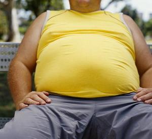 Причины ожирения.