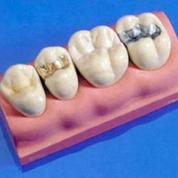 Какие существуют зубные пломбы.
