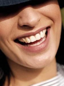 Как добиться голливудской улыбки?