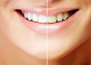 Отбеливание зубов- технология ZOOM