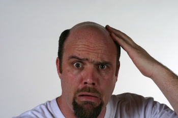 Почему мужчины лысеют?