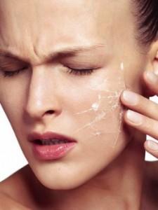 Что делать, если у вас сухая кожа