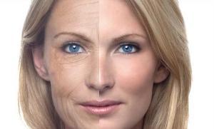 Главные признаки старения- морщины