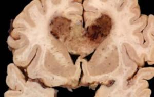 Клетки рака мозга